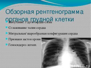 Обзорная рентгенограмма органов грудной клетки Выбухание 3 дуги сердца слева Сгл