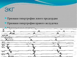 ЭКГ Признаки гипертрофии левого предсердия Признаки гипертрофии правого желудочк