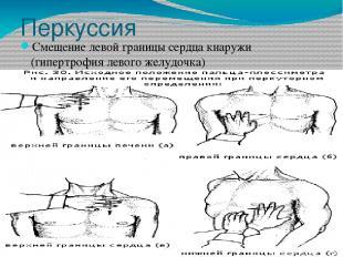 Перкуссия Смещение левой границы сердца кнаружи (гипертрофия левого желудочка)