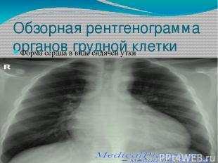 Обзорная рентгенограмма органов грудной клетки Форма сердца в виде сидячей утки