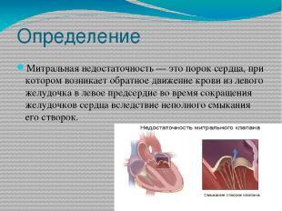Определение Митральная недостаточность — это порок сердца, при котором возникает
