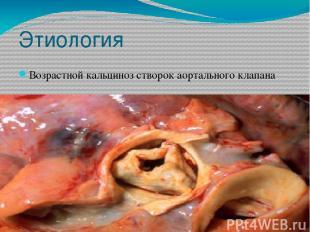 Этиология Возрастной кальциноз створок аортального клапана