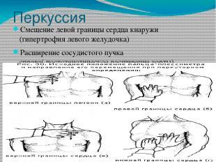 Перкуссия Смещение левой границы сердца кнаружи (гипертрофия левого желудочка) Р