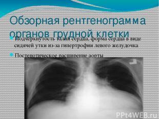 Обзорная рентгенограмма органов грудной клетки Подчеркнутость талии сердца, форм