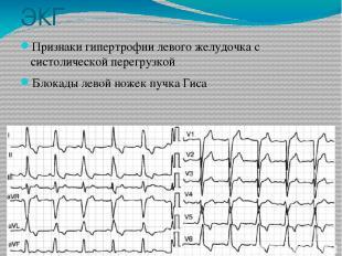 ЭКГ Признаки гипертрофии левого желудочка с систолической перегрузкой Блокады ле