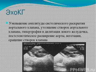 ЭхоКГ Уменьшение амплитуды систолического раскрытия аортального клапана, утолщен