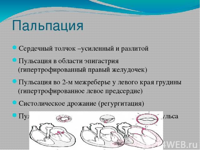 Пальпация Сердечный толчок –усиленный и разлитой Пульсация в области эпигастрия (гипертрофированный правый желудочек) Пульсация во 2-м межреберье у левого края грудины (гипертрофированное левое предсердие) Систолическое дрожание (регургитация) Пульс…