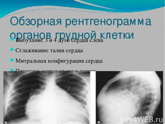 Обзорная рентгенограмма органов грудной клетки Выбухание 3 и 4 дуги сердца слева Сглаживание талии сердца Митральная конфигурация сердца Признаки застоя крови в легких