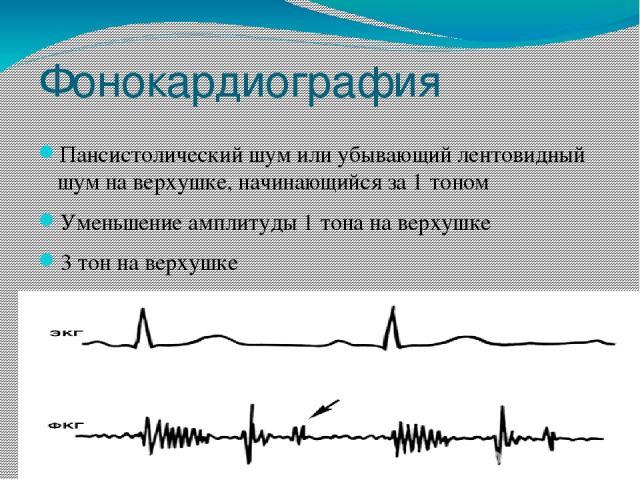 Фонокардиография Пансистолический шум или убывающий лентовидный шум на верхушке, начинающийся за 1 тоном Уменьшение амплитуды 1 тона на верхушке 3 тон на верхушке