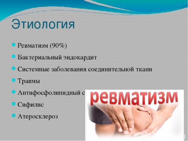 Этиология Ревматизм (90%) Бактериальный эндокардит Системные заболевания соединительной ткани Травмы Антифосфолипидный синдром Сифилис Атеросклероз