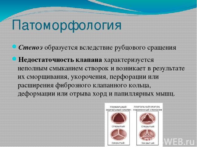 Патоморфология Стенозобразуется вследствие рубцового сращения Недостаточность клапана характеризуется неполным смыканием створок и возникает в результате их сморщивания, укорочения, перфорации или расширения фиброзного клапанного кольца, деформации…