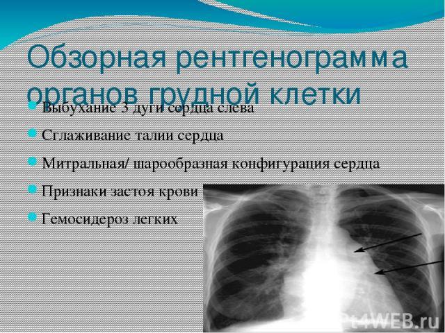 Обзорная рентгенограмма органов грудной клетки Выбухание 3 дуги сердца слева Сглаживание талии сердца Митральная/ шарообразная конфигурация сердца Признаки застоя крови в легких Гемосидероз легких