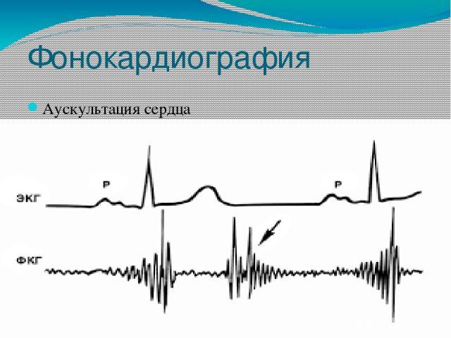 Фонокардиография Аускультация сердца