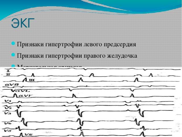 ЭКГ Признаки гипертрофии левого предсердия Признаки гипертрофии правого желудочка Мерцательная аритмия