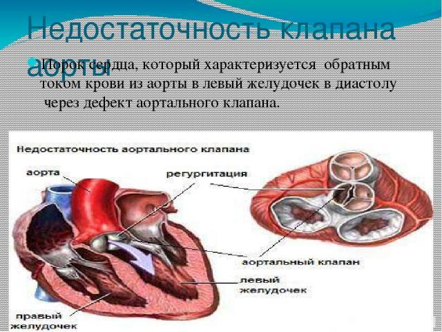 Недостаточность клапана аорты Порок сердца, который характеризуется обратным током крови изаортывлевый желудочеквдиастолучерез дефектаортального клапана.