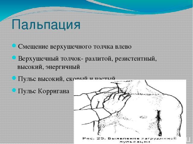 Пальпация Смещение верхушечного толчка влево Верхушечный толчок- разлитой, резистентный, высокий, энергичный Пульс высокий, скорый и частый Пульс Корригана