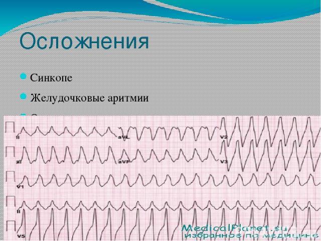 Осложнения Синкопе Желудочковые аритмии Остановка сердца