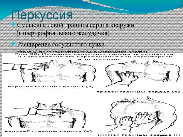 Перкуссия Смещение левой границы сердца кнаружи (гипертрофия левого желудочка) Расширение сосудистого пучка справа( постстенотическое расширение аорты)