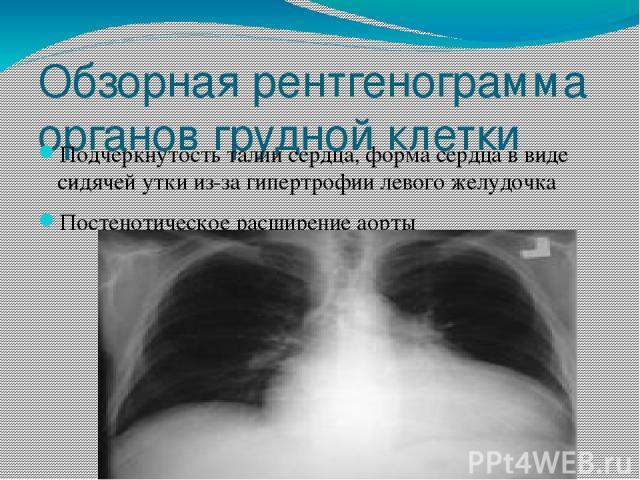 Обзорная рентгенограмма органов грудной клетки Подчеркнутость талии сердца, форма сердца в виде сидячей утки из-за гипертрофии левого желудочка Постенотическое расширение аорты