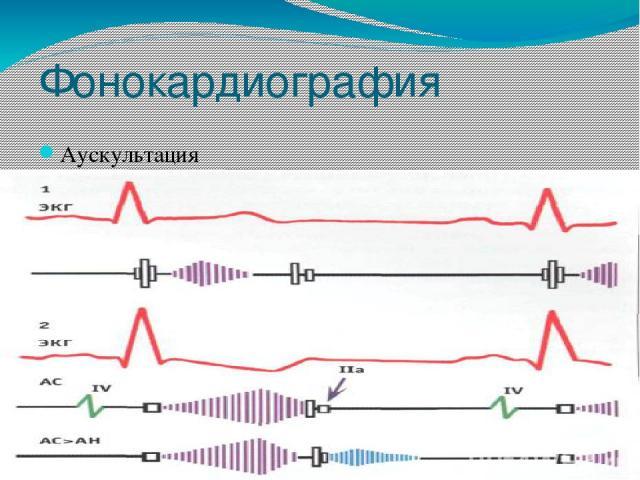 Фонокардиография Аускультация