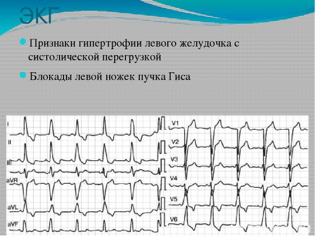 ЭКГ Признаки гипертрофии левого желудочка с систолической перегрузкой Блокады левой ножек пучка Гиса