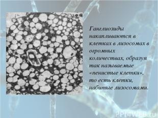 Ганглиозиды накапливаются в клетках в лизосомах в огромных количествах, образуя