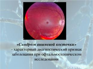 «Синдром вишневой косточки» - характерный диагностический признак заболевания пр