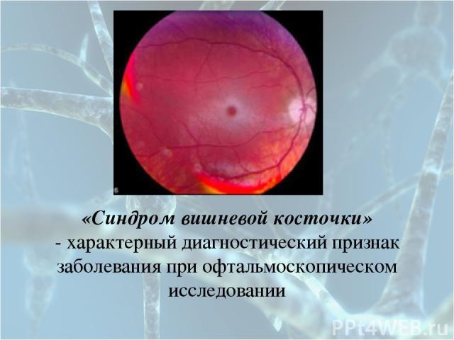 «Синдром вишневой косточки» - характерный диагностический признак заболевания при офтальмоскопическом исследовании