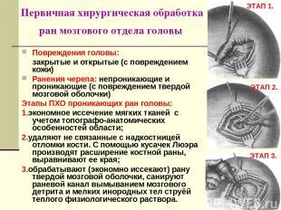 Первичная хирургическая обработка ран мозгового отдела головы Повреждения головы