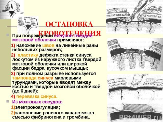 ОСТАНОВКА КРОВОТЕЧЕНИЯ При повреждении синусов твердой мозговой оболочки применяют: 1) наложение швов на линейные раны небольших размеров; 2) пластику дефекта стенки синуса лоскутом из наружного листка твердой мозговой оболочки или широкой фасции бе…