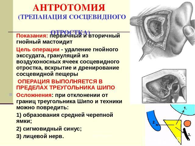 АНТРОТОМИЯ (ТРЕПАНАЦИЯ СОСЦЕВИДНОГО ОТРОСТКА) Показания: первичный и вторичный гнойный мастоидит Цель операции - удаление гнойного экссудата, грануляций из воздухоносных ячеек сосцевидного отростка, вскрытие и дренирование сосцевидной пещеры ОПЕРАЦИ…