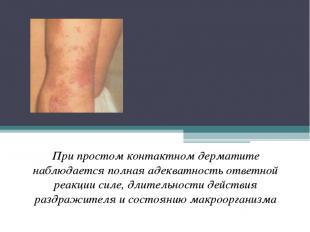 Простой , острый (искусственный, контактный, артифициальный, ирритантный) дермат
