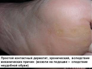 Простой контактный дерматит, хронический, вследствие механических причин (мозоли