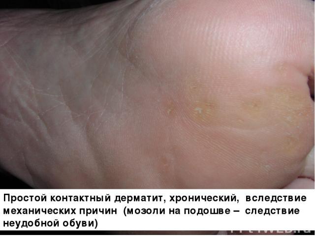 Простой контактный дерматит, хронический, вследствие механических причин (мозоли на подошве – следствие неудобной обуви)
