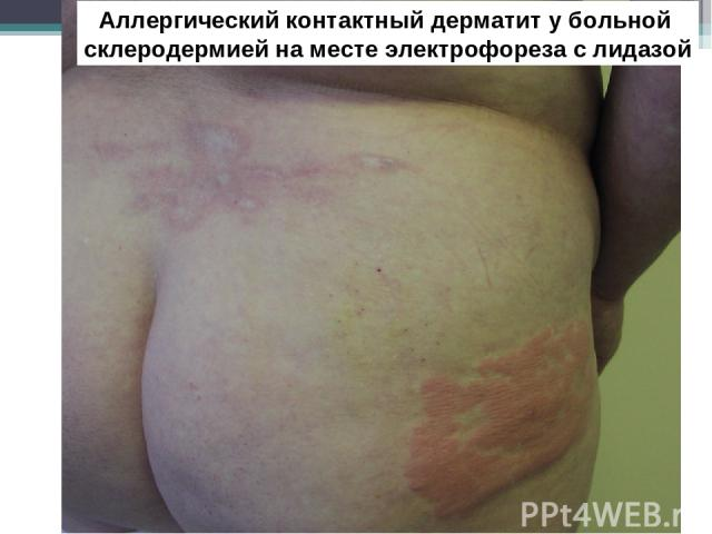 Аллергический контактный дерматит у больной склеродермией на месте электрофореза с лидазой