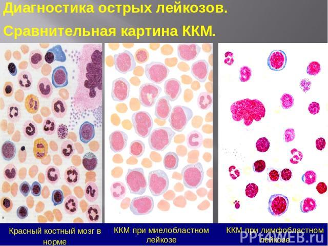 Красный костный мозг в норме ККМ при лимфобластном лейкозе ККМ при миелобластном лейкозе Диагностика острых лейкозов. Сравнительная картина ККМ.