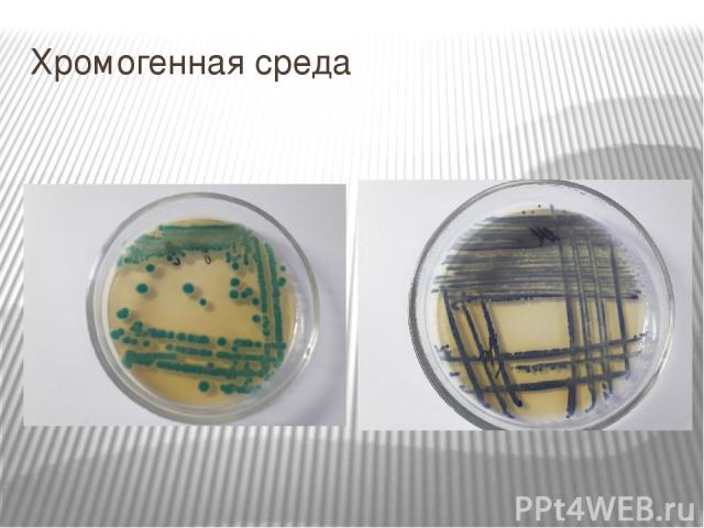 Хромогенная среда