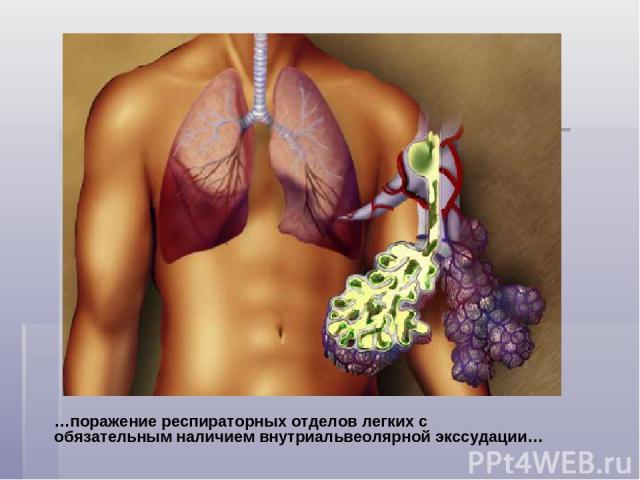 …поражение респираторных отделов легких с обязательным наличием внутриальвеолярной экссудации…