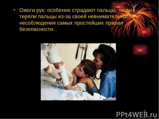 * Ожоги рук: особенно страдают пальцы, люди теряли пальцы из-за своей невнимательности и несоблюдения самых простейших правил безопасности.