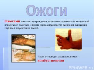 Ожогами называют повреждения, вызванные термической, химической или лучевой энер