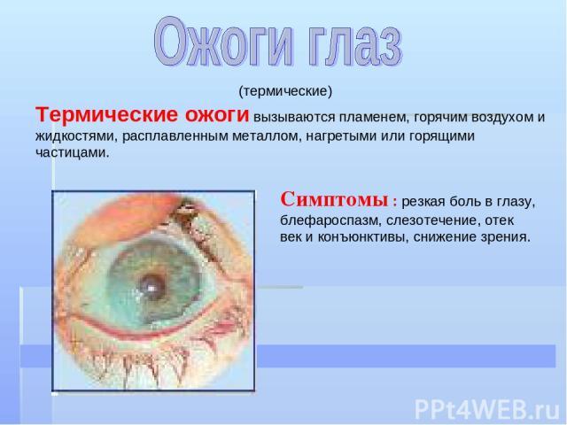 (термические) Термические ожоги вызываются пламенем, горячим воздухом и жидкостями, расплавленным металлом, нагретыми или горящими частицами. Симптомы : резкая боль в глазу, блефароспазм, слезотечение, отек век и конъюнктивы, снижение зрения.