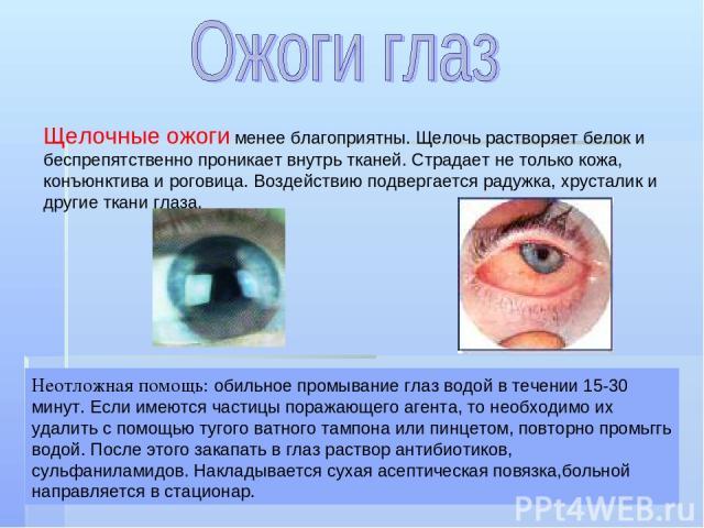 Щелочные ожоги менее благоприятны. Щелочь растворяет белок и беспрепятственно проникает внутрь тканей. Страдает не только кожа, конъюнктива и роговица. Воздействию подвергается радужка, хрусталик и другие ткани глаза. Неотложная помощь: обильное про…