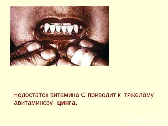 Недостаток витамина C приводит к тяжелому авитаминозу- цинга.