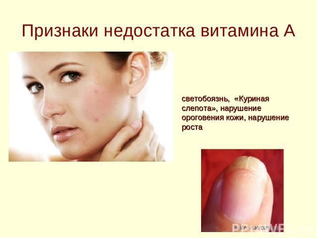 светобоязнь, «Куриная слепота», нарушение ороговения кожи, нарушение роста Признаки недостатка витамина А