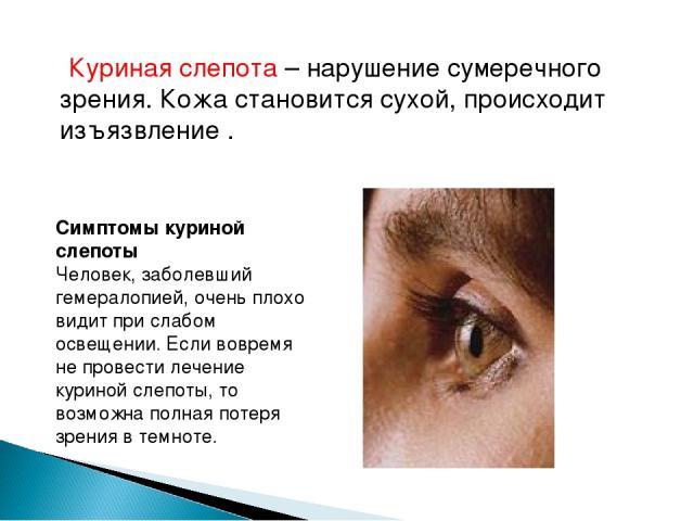 Куриная слепота – нарушение сумеречного зрения. Кожа становится сухой, происходит изъязвление . Симптомы куриной слепоты Человек, заболевший гемералопией, очень плохо видит при слабом освещении. Если вовремя не провести лечение куриной слепоты, то в…