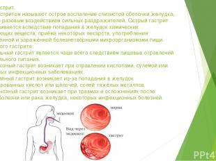 Острый гастрит. Острым гастритом называют острое воспаление слизистой оболочки ж