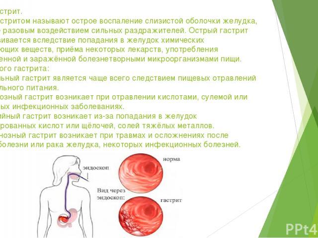 Острый гастрит. Острым гастритом называют острое воспаление слизистой оболочки желудка, вызванное разовым воздействием сильных раздражителей. Острый гастрит часто развивается вследствие попадания в желудок химических раздражающих веществ, приёма нек…