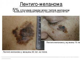 Лентиго-меланома 5% случаев среди всех типов меланом ___________________________