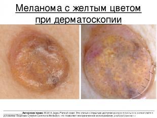 Меланома с желтым цветом при дерматоскопии _____________________________________