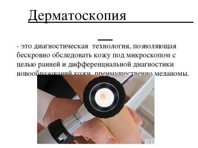 Дерматоскопия - это диагностическая технология, позволяющая бескровно обследовать кожу под микроскопом с целью ранней и дифференциальной диагностики новообразований кожи, преимущественно меланомы.